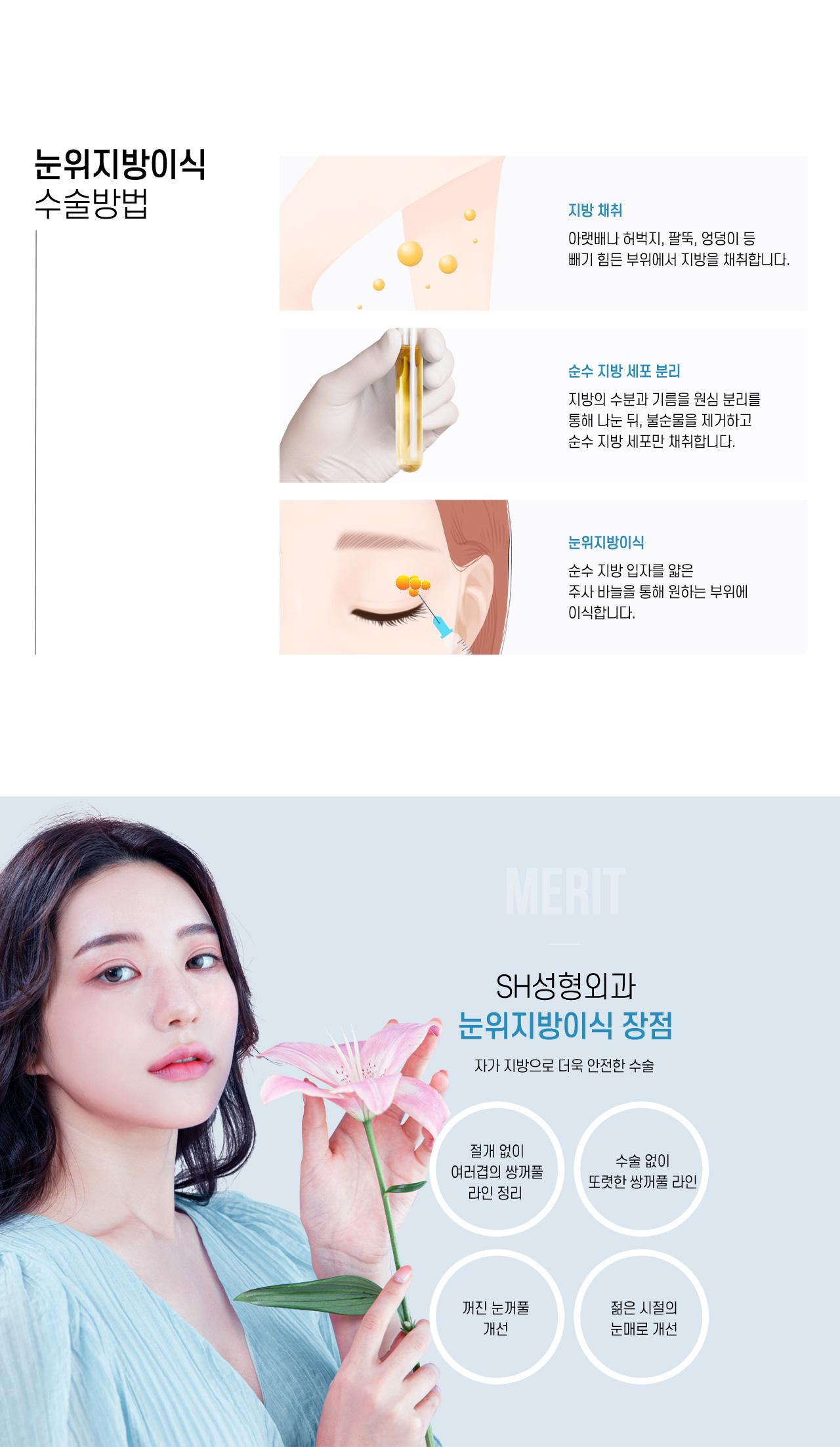 눈위지방이식 수술방법
